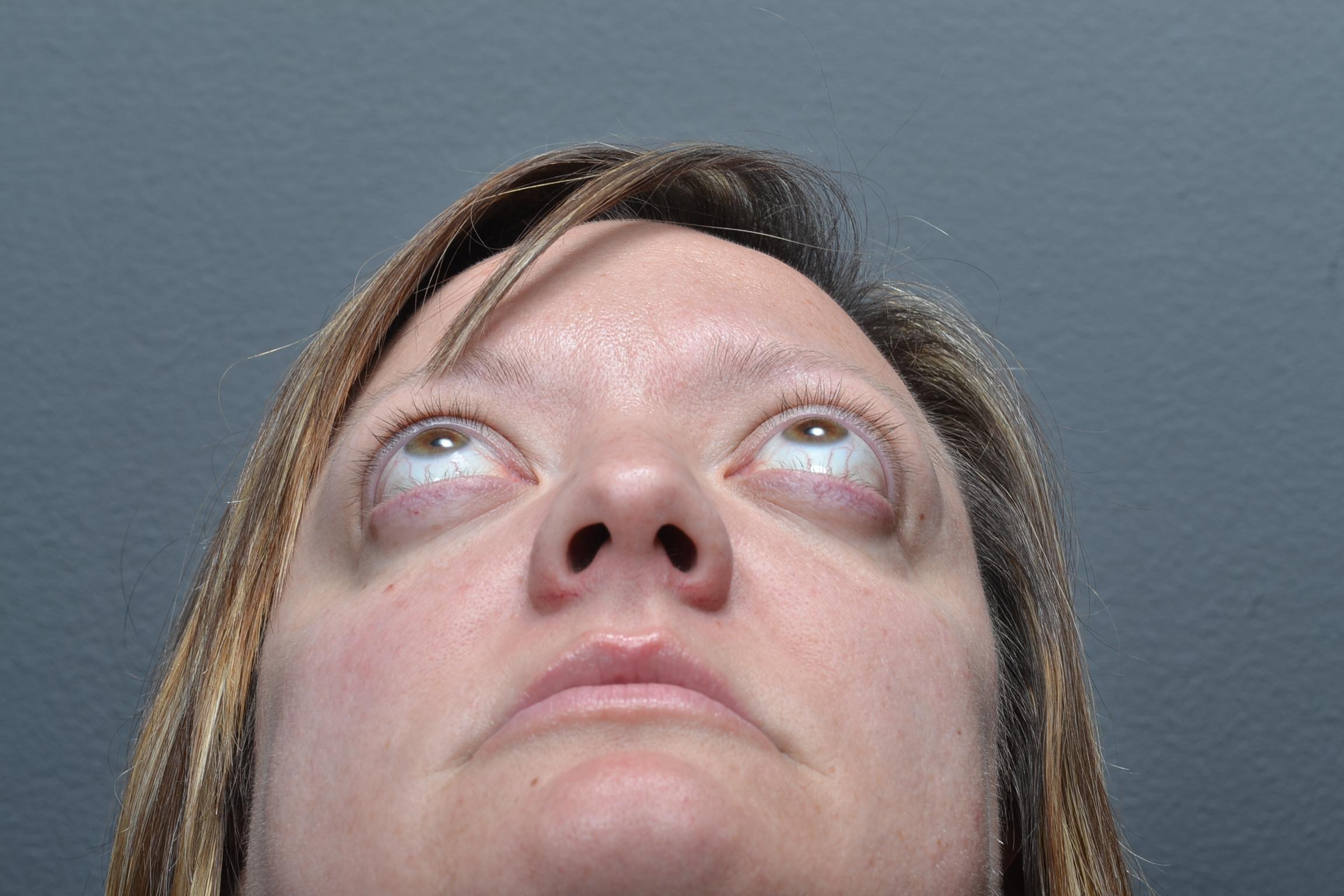 Teprotumamab Center For Facial Appearances