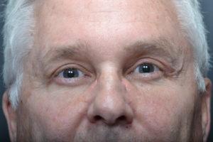 Brow Ptosis After, After Brow Ptosis Surgery
