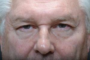 Brow Ptosis, Brow Ptosis Surgery, Droopy Eyebrow