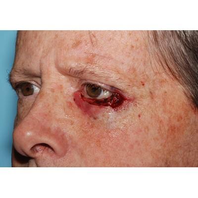 Eyelid Cancer Skin Cancer