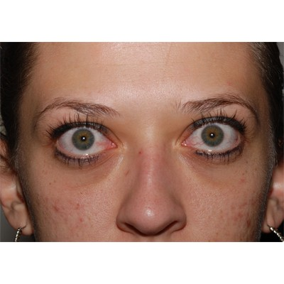 Thyroid Eye Graves Disease